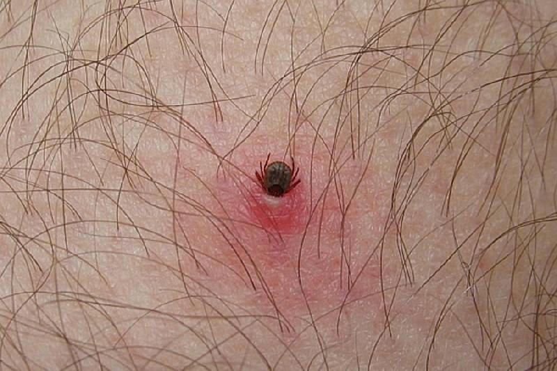 В Смоленской области выявлено два случая заболевания людей клещевым боррелиозом