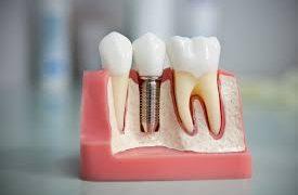Протезирования зубов в Белоруссии для пациентов из РФ и СНГ