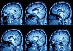 Как лечить кисту в мозге?