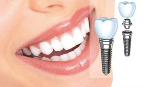 Протезирование зубов. Преимущества и недостатки косметической стоматологии