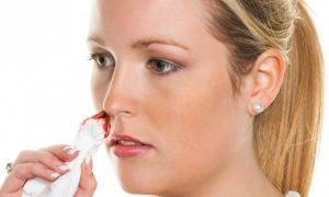 Почему идёт кровь из носа и как её остановить