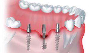 Имплантация зубов: идеальная услуга в сфере стоматологии