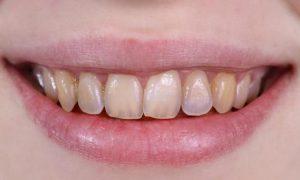 Эрозия твердых тканей зубов