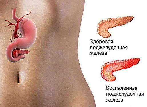 О реактивном панкреатите