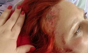 «Водитель скрылся». Смоленская полиция ищет свидетелей ДТП со сбитой женщиной