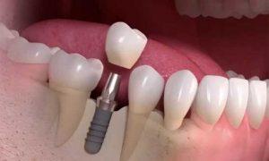 Высококачественное протезирование зубов в Китае
