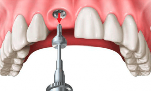 Имплантация зубов: как и зачем?