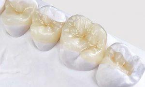 Вкладки в зубном протезировании