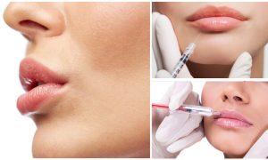 Гиалуроновая кислота как один из популярных способов увеличения губ
