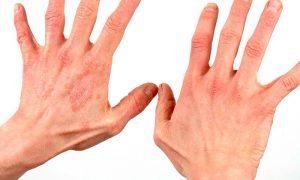 Как вылечить псориаз ладоней и ногтей: современные методики лечения в Москве