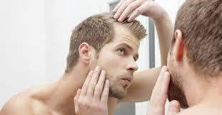 Борьба с выпадением волос у мужчин