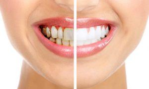 Зубной камень: определение, профилактика и удаление