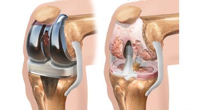 Замена коленного сустава: реабилитация