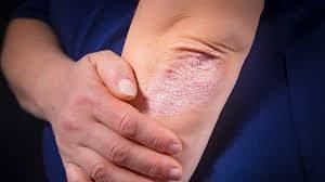 Причины развития и лечение псориаза