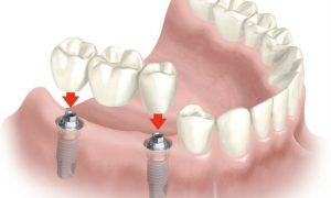 Протезирование зубов. Современный подход