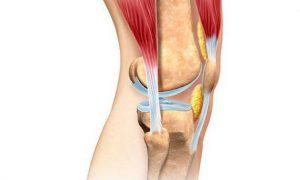 Деформирующий остеоартроз: причины, классификация и симптомы