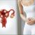Миома матки, признаки, диагностика и методы лечения