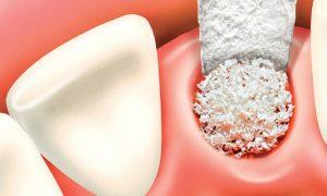 Костная пластика – важный шаг к приобретению здорового внешнего вида