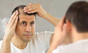 Специалисты выяснили, кто из мужчин имеет больший риск облысеть с возрастом