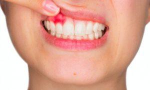 7 народных рецептов при кисте зуба