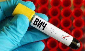 Профилактика ВИЧ-инфекции: полезные советы