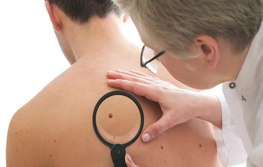 Смолянам помогут в ранней диагностике рака кожи