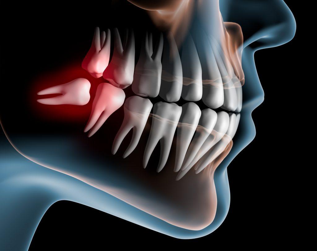 Стоматология. Проблемы с зубами мудрости — причины, признаки, симптомы и методы лечения