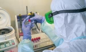 В Смоленске делать тесты на COVID-19 будут в противотуберкулезном диспансере