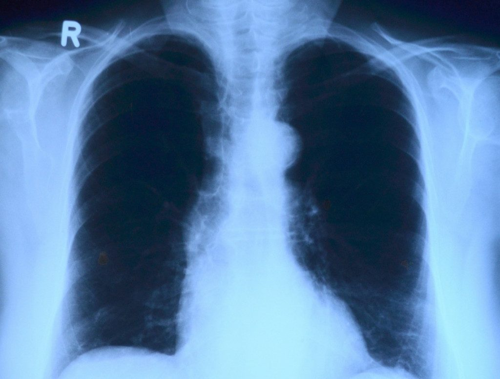В Смоленске с начала года снизилась заболеваемость внебольничной пневмонией