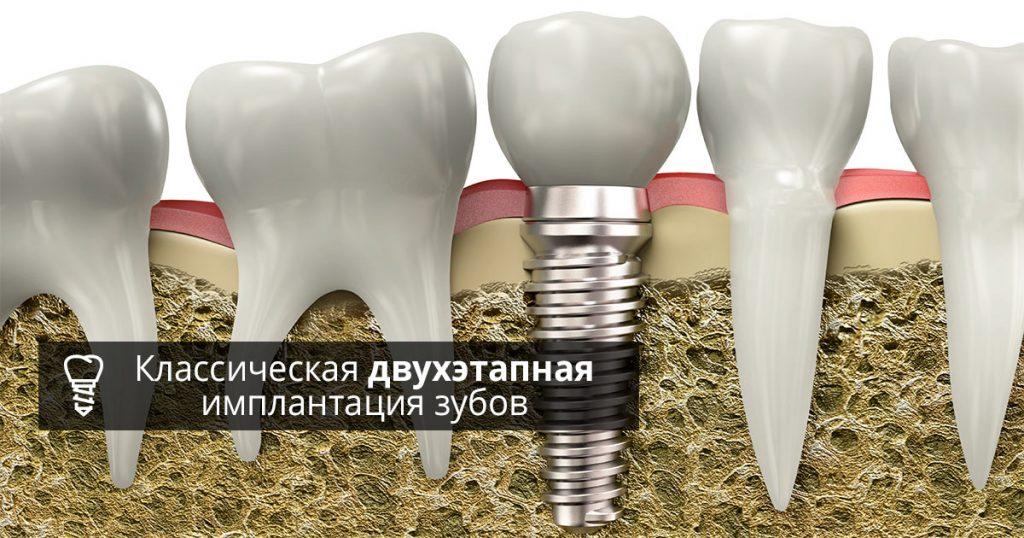 Двухэтапная имплантация в Минске