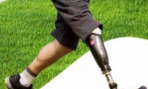 Протезно-ортопедические изделия – шанс снова почувствовать себя полноценным