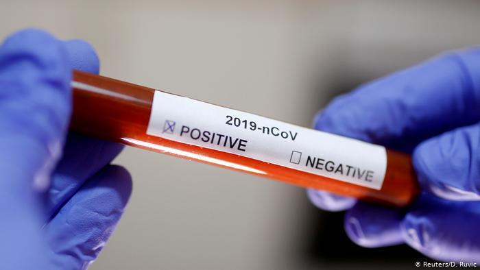 На какой территории Смоленской области выявили больше всего новых коронавирусных больных