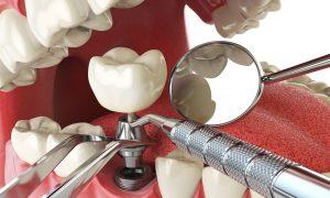 Особенности современной ортодонтии