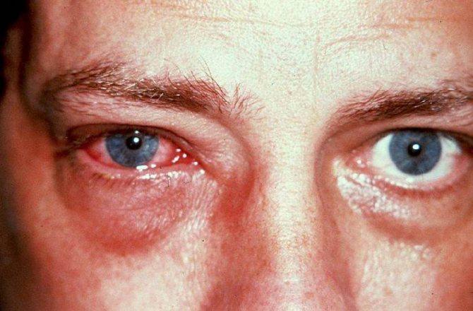 Аллергический конъюнктивит: причины, симптомы, лечение