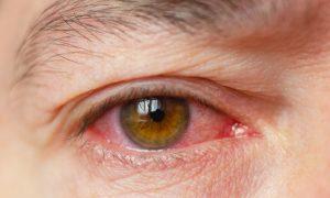 Натуральные средства, которые избавят от ощущения раздражения и жжения в глазах