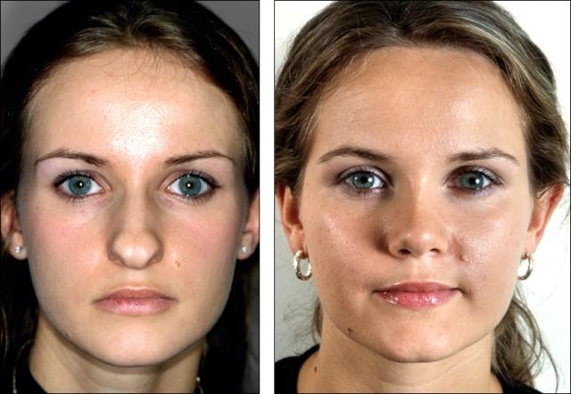 Ринопластика до и после: что необходимо знать об операции носа