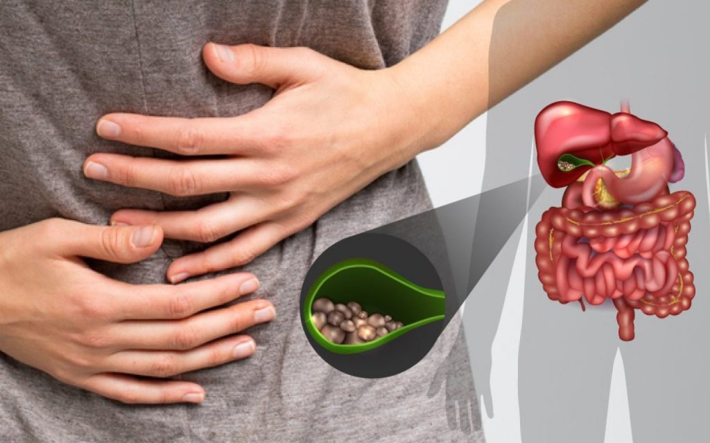 Заболевание Желчного Пузыря Симптомы И Лечение Диета