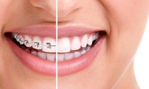 Не откладывай: визит к ортодонту