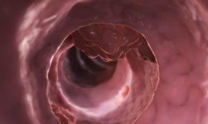 Первые признаки рака прямой кишки