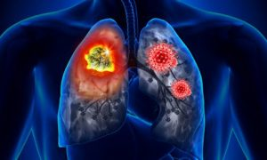 Врачи рассказали о нехарактерных симптомах рака легких