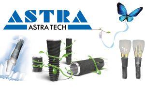 Импланты Astra Tech и их преимущества