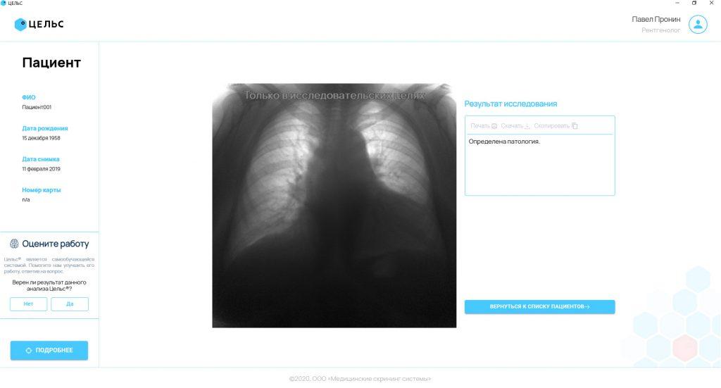 Цельс – нейронная сеть анализирующая медицинские изображения