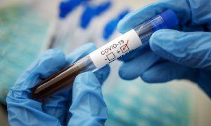 Роспотребнадзор разработал новый высокоточный тест на COVID-19