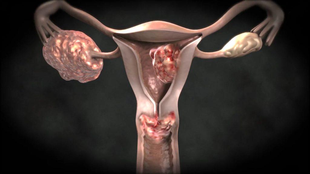 Причины возникновения рака матки