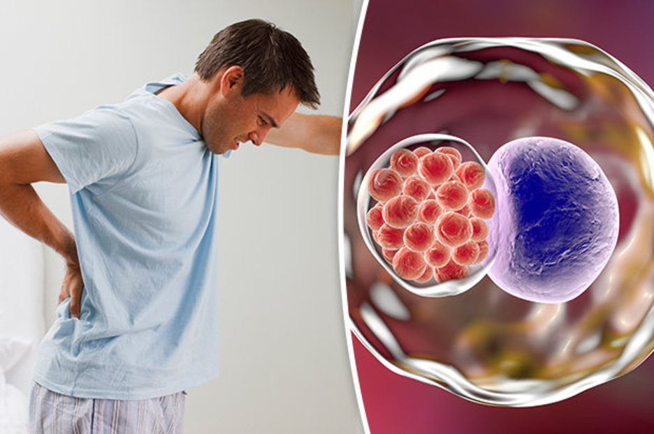 Хламидиоз у мужчин и способы его лечения