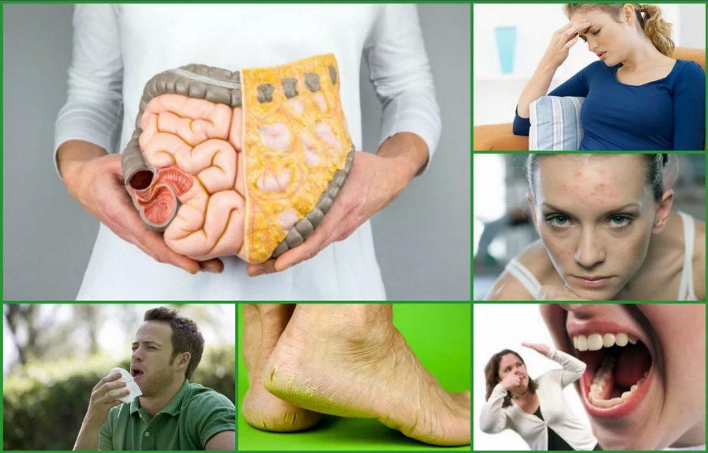 10 признаков, как определить наличие шлаков и токсинов в организме