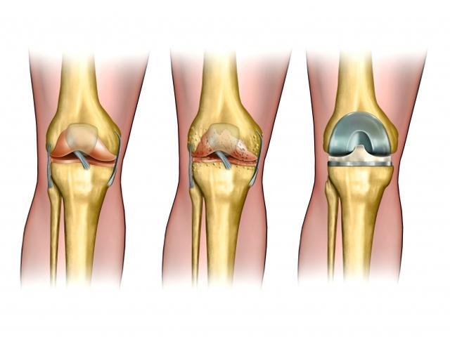 Восстановление после частичной замены коленного сустава