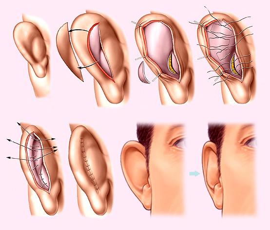С какого возраста можно проводить пластическую хирургию ушей?