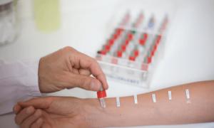 Особенности аллергической сыпи: анализ на аллергены