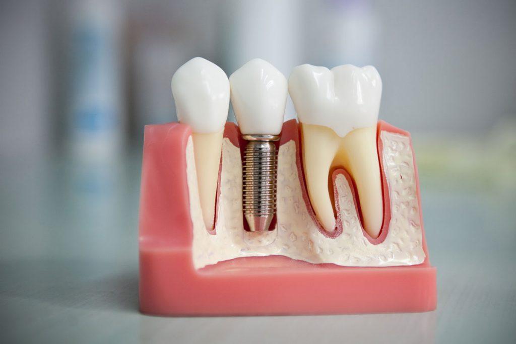 Имплантация зубов — что это, для чего делается, преимущества
